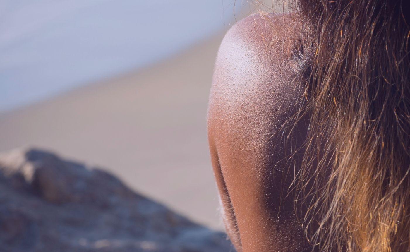 beneficios de la melatonina en tu piel